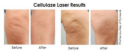 Cellulaze Results
