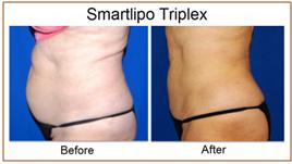Smartlipo TriPlex
